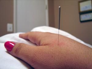 Needle in hand